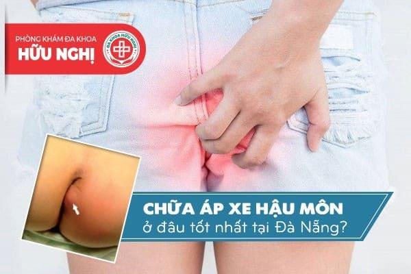 Khám chữa bệnh áp xe hậu môn ở đâu tốt nhất tại Đà Nẵng