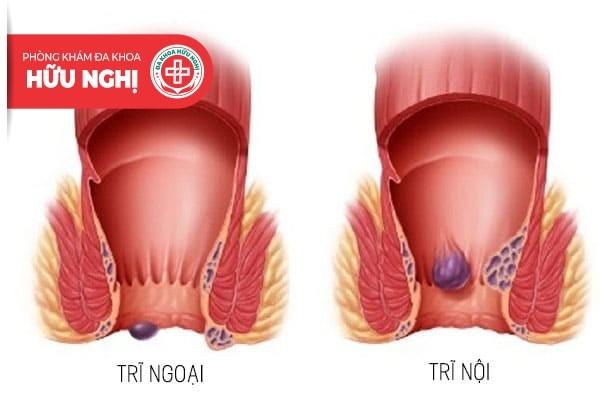 Bệnh trĩ ngoại gây ra nhiều biến chứng nguy hiếm nếu như không điều trị sớm
