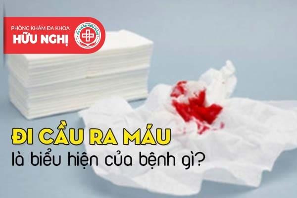 Đi cầu ra máu là biểu hiện của bệnh gì?