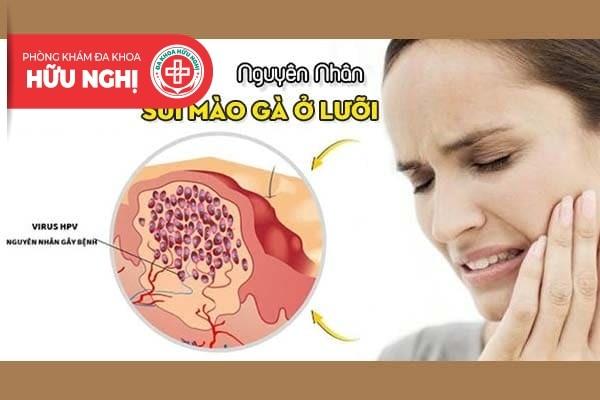 Nguyên nhân dẫn đến các biểu hiện sùi mào gà ở lưỡi