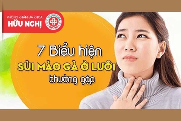 7 Biểu hiện sùi mào gà ở lưỡi thường gặp - Phòng Khám Hữu Nghị