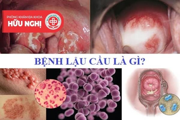 Những triệu chứng bệnh lậu thường gặp