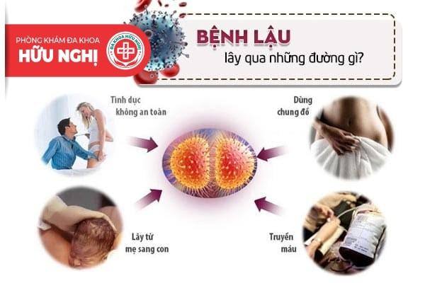 Hiểu về bệnh lậu và đường lây nhiễm