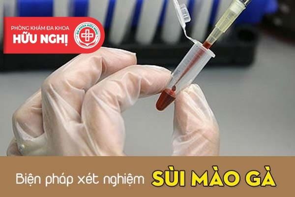 Tìm kiếm một địa chỉ chữa trị sùi mào gà uy tín tại Đà Nẵng