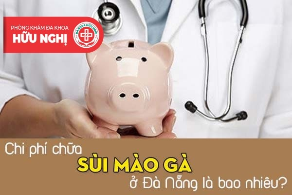 Chi phí chữa sùi mào gà ở Đà Nẵng là bao nhiêu?