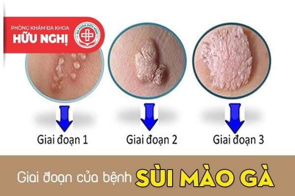 Diễn biến các giai đoạn của bệnh sùi mào gà
