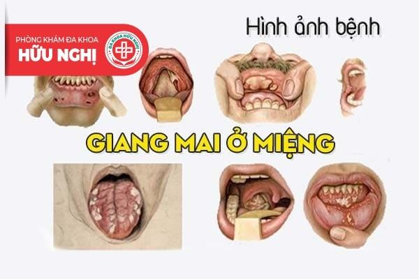 Điểm qua một số hình ảnh bệnh giang mai ở miệng