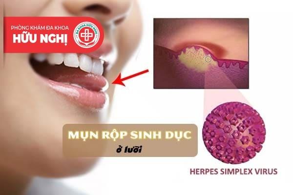 Điểm qua các thông tin về căn bệnh mụn rộp sinh dục ở lưỡi