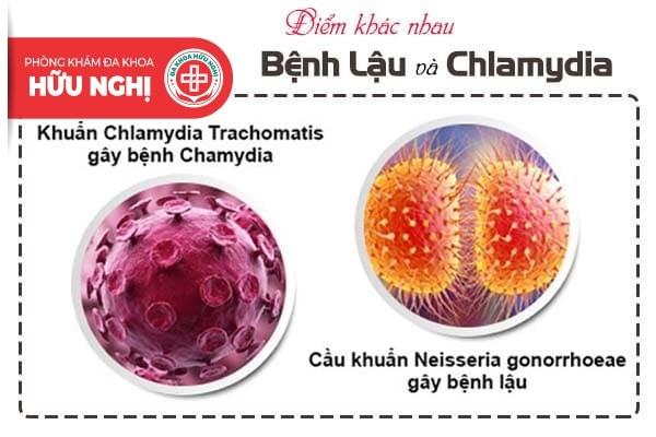 Điểm khác nhau để phân biệt bệnh lậu với chlamydia