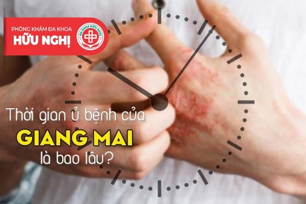 Thời gian ủ bệnh của giang mai là bao lâu?