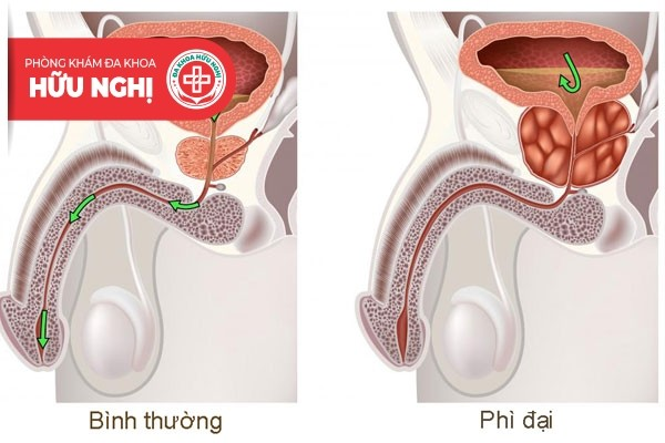 Phì đại tuyến tiền liệt là bệnh nam khoa thường gặp ở nam giới lớn tuổi