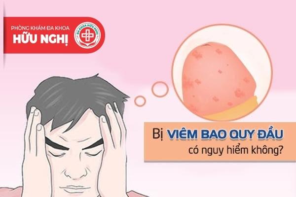 Bị viêm bao quy đầu có nguy hiểm không?