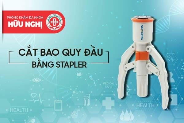 Cắt bao quy đầu công nghệ mới với máy Stapler