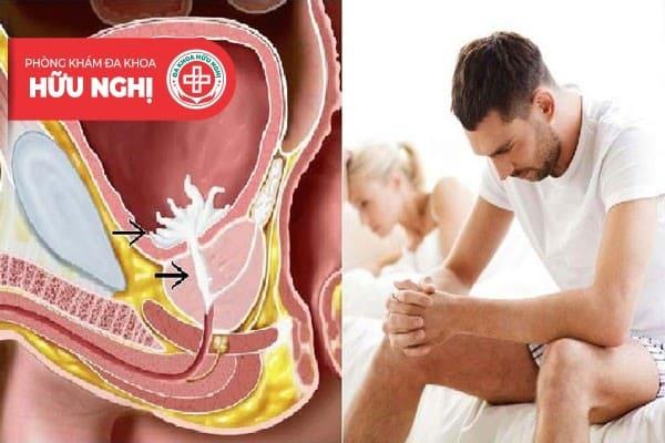 Xuất tinh ngược có thể gây vô sinh cho nam giới nếu không được điều trị sớm