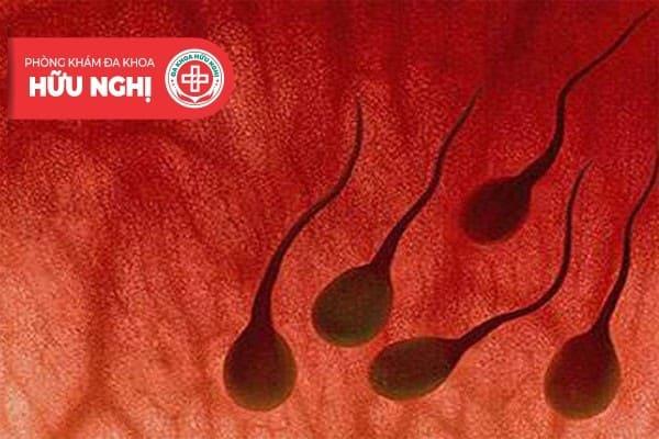 Xuất tinh ra máu là dấu hiệu cảnh báo nhiều bệnh nam khoa nguy hiểm
