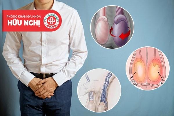 Đau tinh hoàn có thể là dấu hiệu cảnh báo nhiều bệnh lý nguy hiểm