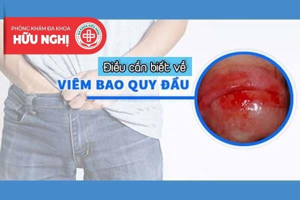 Điểm qua thông tin về bệnh viêm bao quy đầu