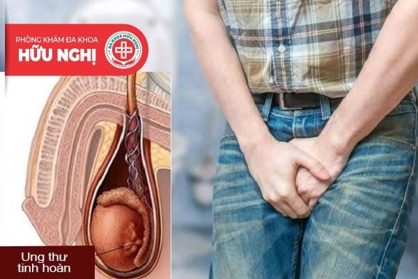 Tìm hiểu các bệnh lý dẫn đến tình trạng đau tinh hoàn