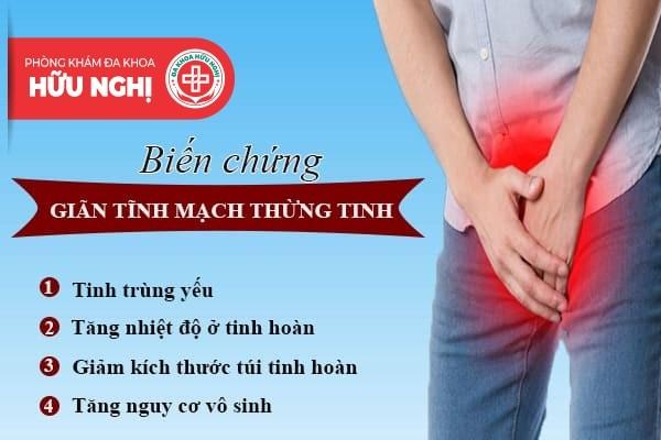 Chữa trị bệnh giãn tĩnh mạch thừng tinh ở đâu tại Huế?