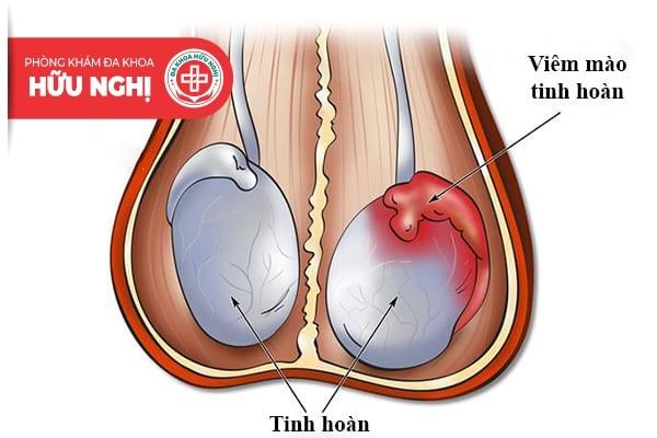 Bệnh viêm tinh hoàn thường xảy ra ở những nam giới có đời sống tình dục phóng khoáng
