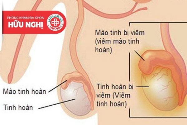 Viêm tinh hoàn là bệnh lý thường gặp ở nam giới