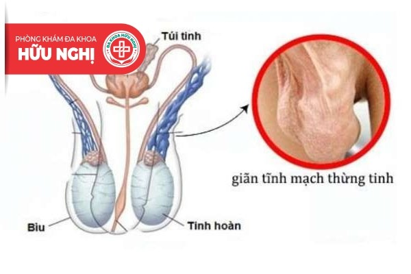 Giãn tĩnh mạch thừng tinh thường gây đau tinh hoàn