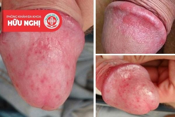 Nổi mẩn đỏ ở quy đầu là dấu hiệu cảnh báo bệnh viêm bao quy đầu