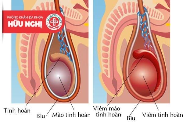 Viêm mào tinh hoàn mãn tính là giai đoạn nặng của bệnh
