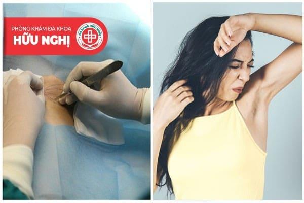Cắt tuyến mồ hôi nách là cách giúp loại bỏ mùi hôi nách hiệu quả