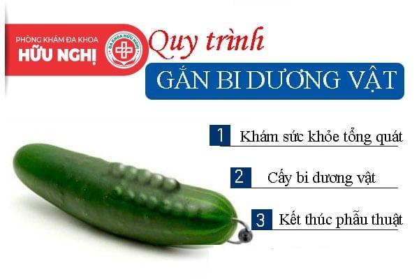 Chi phí gắn bi dương vật ở Đà Nẵng có đắt không?