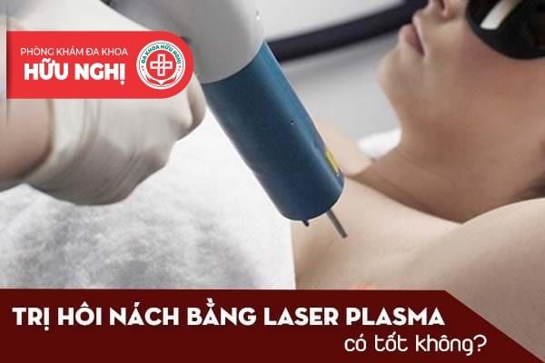 Trị hôi nách bằng laser plasma có tốt không?