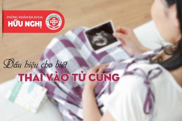 Dấu hiệu nào cho thấy thai đã vào tử cung an toàn?