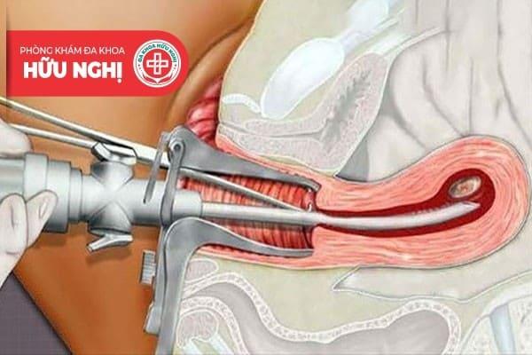 Nạo hút thai an toàn cần được thực hiện ở cơ sở y tế uy tín
