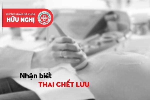 Nhận biết sớm các triệu chứng của tình trạng thai chết lưu