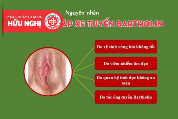 Áp xe tuyến Bartholin bị vỡ và cách điều trị bệnh hiệu quả