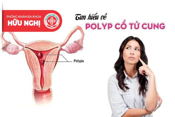 Tìm hiểu về căn bệnh polyp cổ tử cung