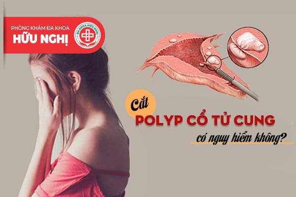Cắt polyp cổ tử cung có nguy hiểm không?