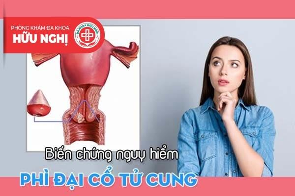 Biến chứng nguy hiểm từ căn bệnh phì đại cổ tử cung