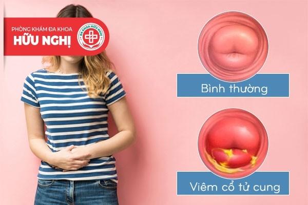 Viêm cổ tử cung là bệnh phụ khoa rất thường gặp ở nhiều chị em
