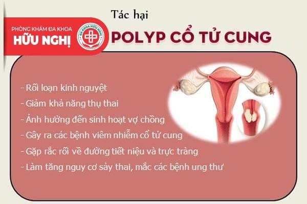 Nếu mắc polyp cổ tử cung không chữa trị sẽ dẫn đến điều gì?