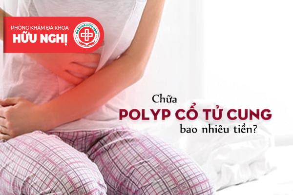 Chi phí chữa polyp cổ tử cung bao nhiêu tiền?