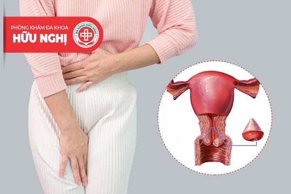 Phì đại cổ tử cung là một trong những bệnh phụ khoa nguy hiểm