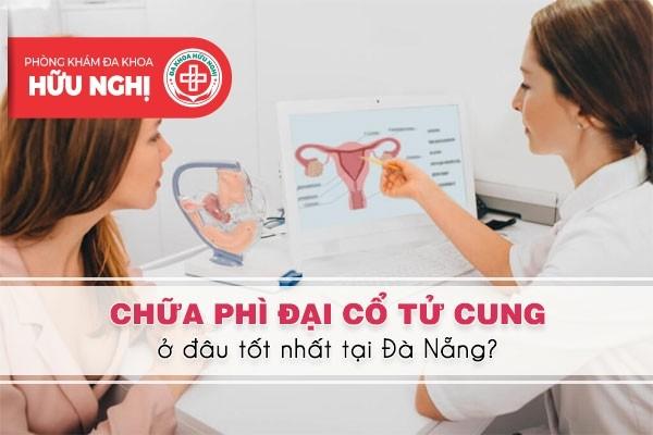 Khám chữa bệnh phì đại cổ tử cung ở đâu tốt nhất tại Đà Nẵng