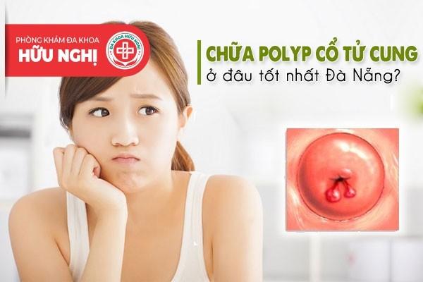 Khám chữa bệnh polyp cổ tử cung ở đâu tốt nhất tại Đà Nẵng