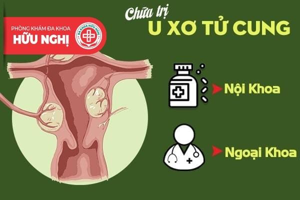 Biện pháp nào dành cho căn bệnh u xơ tử cung