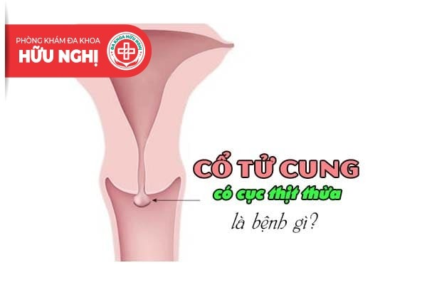 Tình trạng cổ tử cung có cục thịt thừa là bệnh gì?