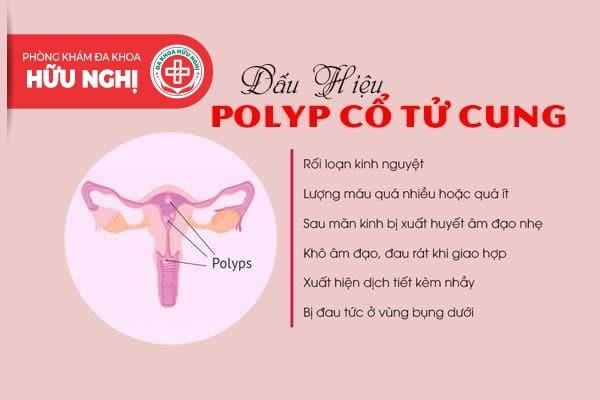Dấu hiệu polyp cổ tử cung thường gặp nhưng hay bị bỏ qua