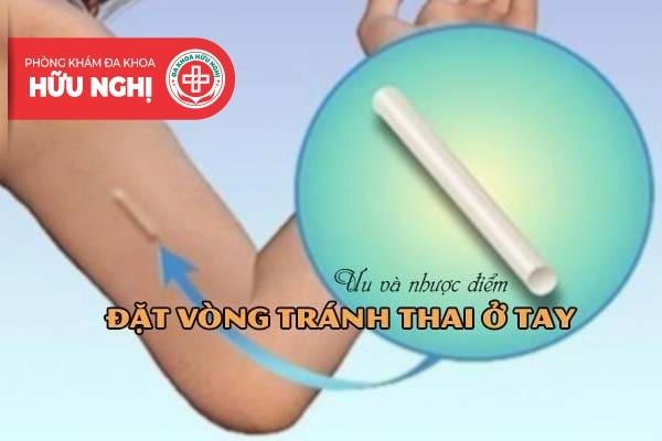 Ưu và nhược điểm của biện pháp đặt vòng tránh thai ở tay