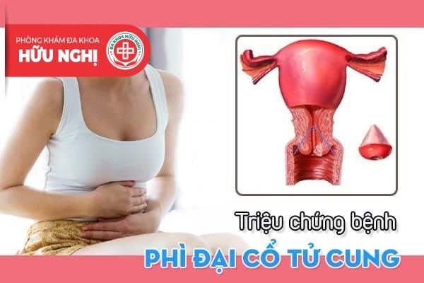 Các triệu chứng giúp nhận biết bệnh phì đại cổ tử cung