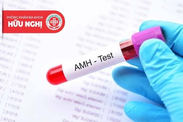 Cách xét nghiệm AMH